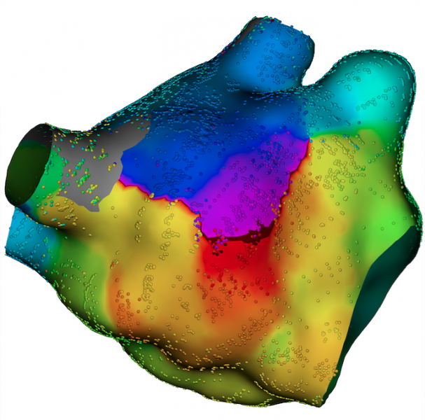 The Boston Scientific Rhythmia Mapping System produces higher-density voltage maps without increasing overall procedure time.