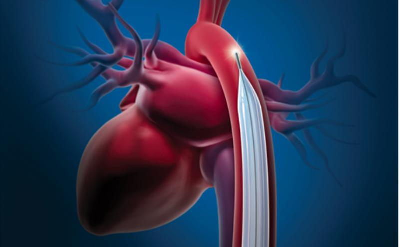 In July, the biggest news item was Datascope initiating a Class I recalled of its intra-aortic balloon pumps due to potential battery failure.  Most Popular Cardiology Technology Content in July 2019