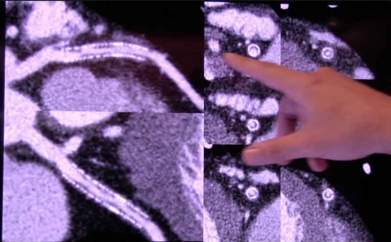 Clear detail of the in-stent restenosis can be seen in this image from the new high-resolution Canon Precision CT system. RSNA 2017, #RSNA2017, #RSNA17