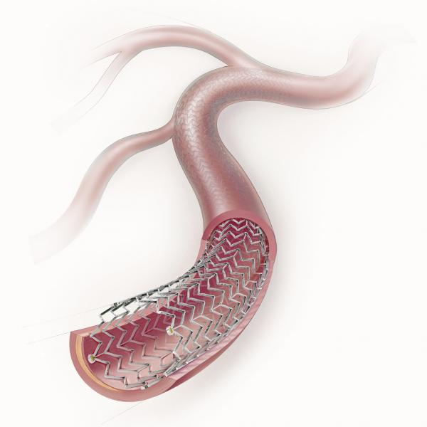 The safety of paclitaxel-eluting stents and drug-coated balloons was called into question in a recent study that showed higher mortality rates after two years. The Cook Zilver PTX paclitaxel-eluting peripheral stent is among the devices included in that study.