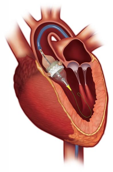 Edwards Sapien 3 cleared by FDA to use for valve in valve mitral procedures