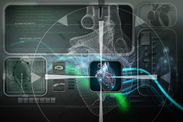 Algorithm Steers Catheters to Right Spot to Treat Atrial Fibrillation