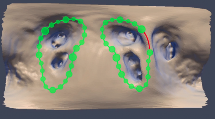 A panoramic real-time visualization of pulmonary vein isolation (PVI) procedure from the DURABLE-I trial using the EDP ablation image guidance system. It highlights a gap (red line) in the left atrial appendage (LAA) ridge that was correctly identified by EPD D700 system, yet undiagnosed by either electrical isolation test or adenosine infusion.