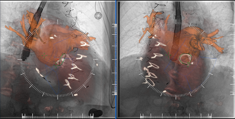 Figure 2: CTA and TEE images are co-registered in two views performed >30 degree apart.