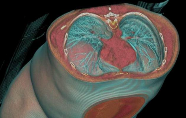 A 40,000 Foot View of Trends in Cardiology