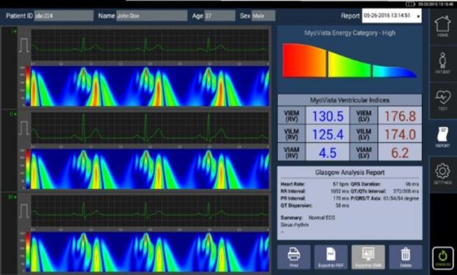 HeartSciences Announces CE Mark and European Launch of MyoVista High Sensitivity ECG