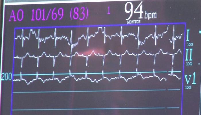 Cheetah Medical, Starling SV, hemodynamic monitoring system, noninvasive