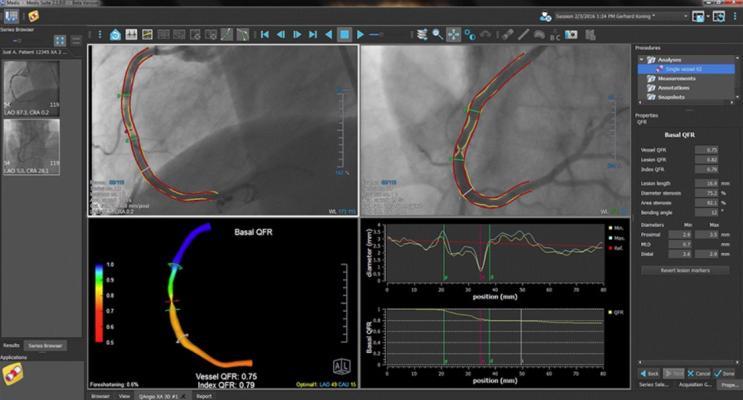Medis QAngio XA 3D Receives FDA 510k Clearance