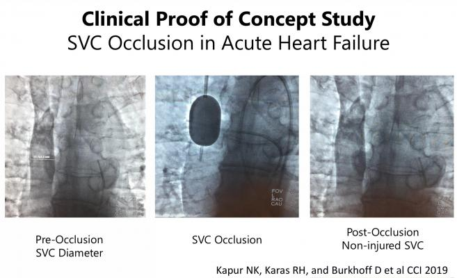 Novel Therapeutic Approach Effective at Reducing Pressure for Heart Failure Patients