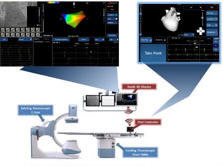 APN Health, Navik 3D cardiac mapping system, FDA clearance