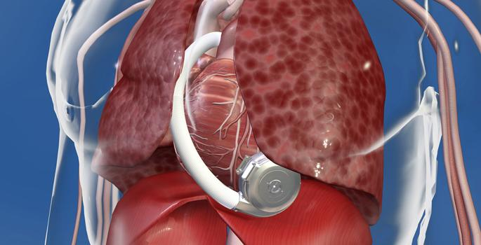 Medtronic HeartWare HVAD System Approved for Destination Therapy