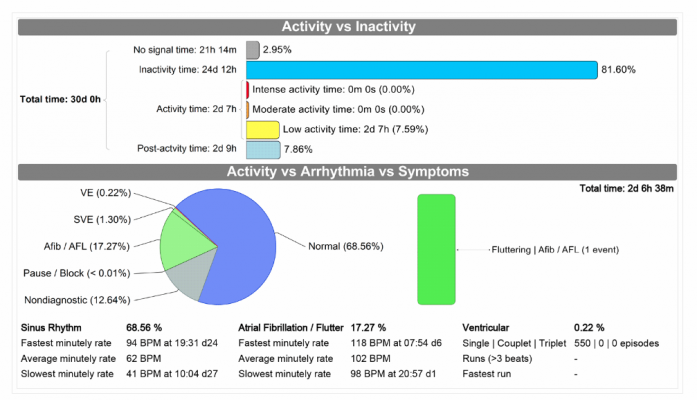 An example of an automated summary cardiac monitor report from Medicalgorithmics' PocketECG system. Most of the the report parameters can be opened as separate pages with additional automated report summaries and graphical data charts.