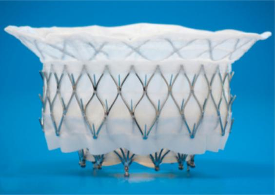 The Medtronic Intrepid transcatheter mitral valve replacement (TMVR) system is being tested in the APOLLO Trial.