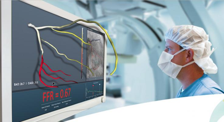 In December 2018, the FDA cleared CathWorks' FFRangio System. It derives the FFR numbers from routine X-rays acquired during a diagnostic fluoroscopic angiogram procedure. It is performed intra-procedurally during a coronary angiography, eliminating additional time and costs associated with invasive FFR. The system provides a 3-D reconstruction of the entire coronary tree with FFR values along each vessel.