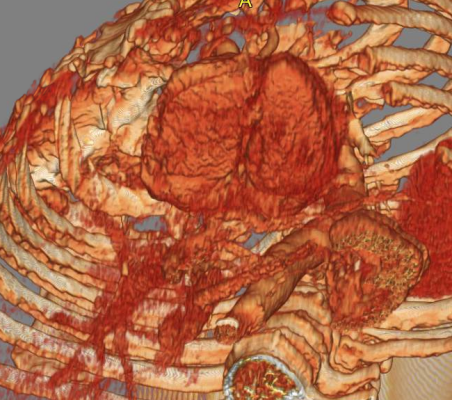 This is a cardiac CT scan that has been reconstructed as a 3D image of the heart. The ACRIN-PA study looked at use of cardiac CT to evaluate chest pain patients in the emergency room.