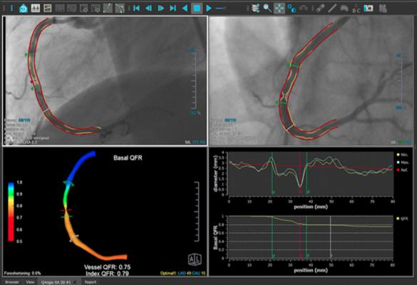 In June 2019, Medis received clearance from the U.S. Food and Drug Administration for its QAngio XA 3D technology (QFR). The FFR-angio technology can show the FFR readings in a 3-D image and overlaid on a fluoro image.