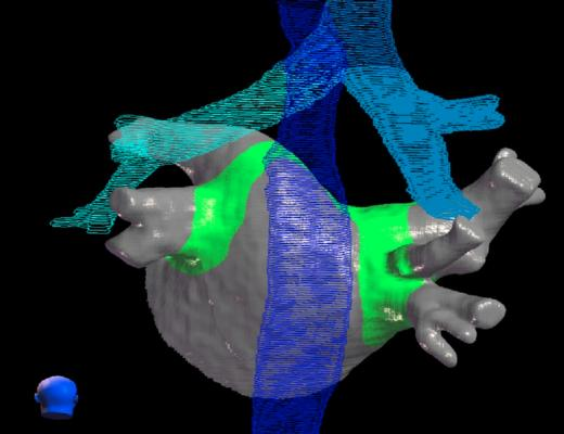 A CyberHeart cardiac ablation radiotherapy treatment plan showing where the radiation beams will ablate for a noninvasive pulmonary vein isolation, in green. The blue shows critical structures in the area around the heart that should be avoided by the radiation beam.