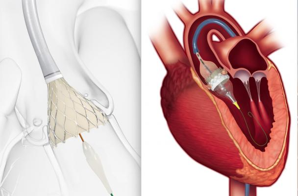 The most popular cardiac technology news in August 2019 was the FDA clearance for a new indication for both the Edwards Sapien 3 and Medtronic CoreValve transcatheter aortic valve replacement (TAVR) devices for low-risk patients. This puts the technology on equal footing with the previous standard-of-care of open heart surgery, representing a paradigm shift in cardiology.