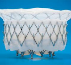University Hospitals Performs Ohio's First Transcatheter Mitral Valve Replacement