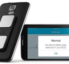 AliveCor, AliveECG app, ECG recording, remote wireless, mobile, patient
