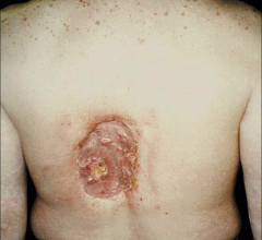 A patient injuried by extreme exposure to X-ray radiation during an angiography procedure, which is included among the images in the American College of Cardiology (ACC) consensus document. Angiography skin burn.