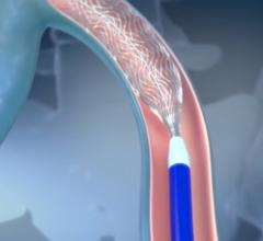 Illustration showing the self-expanding deployment of the Boston Scientific Vici venous stent in the iliofemoral vein.
