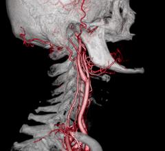 cath lab stents carotid stroke treament trial study balloon john hopkin