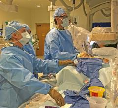 A MitraClip case underway at the University of Colorado Hospital hybrid cath lab. Left to right are doctors John Carroll, Edward Gill and Dominik Wiktor.