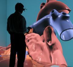 Dassault Systemes, Living Heart model, 3-D simulator
