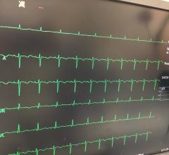 EKG With Artificial Intelligence Reliably Detects Heart Failure Precursor