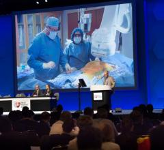 FDA Issues Final Guidance on Live Case Presentations During IDE Clinical Trials