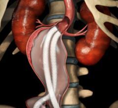 aneurism repair stent graft endologix nellix endovascular evas