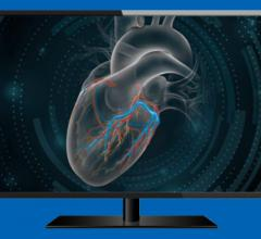 Structured reporting implementation best practices webinar by GE Healthcare. The Centricity Cardio Enterprise is a cardiovascular information system (CVIS).