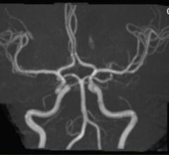 MR angiography, MRA, Bayer, Gadavist, gadobutrol injection, FDA approval, supra-aortic arteries