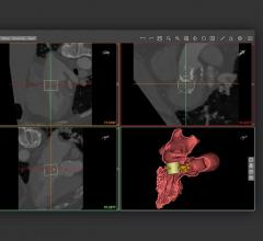 Materialise Receives FDA Clearance for Cardiovascular Planning Software Suite