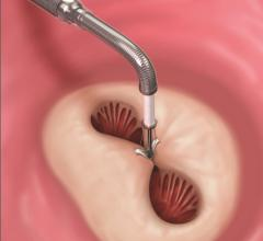 A MitraClip device being deployed to clasp together the leaflets of the mitral valve. This mimics a surgical suture repair to create a double orifice valve with better leaflet coaptation to prevent mitral regurgitation. Abbott Mitraclip device.