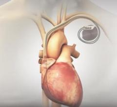 BackBeat Cardiac Neuromodulation Therapy Shows Immediate, Substantial Blood Pressure Reduction