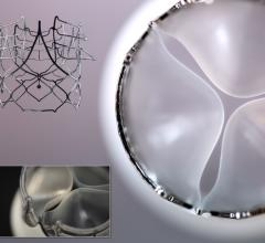 DSM and SAT Partnering to Develop Next-Generation, Cost-Effective Heart Valve