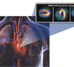 ultraspect xpress.cardiac nuclear imaging spect radiation dose