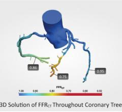 HeartFlow, CT-FFR, computed tomography fractional flow reserve, UH Case Medical