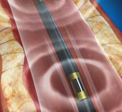 Lithotripsy Safe and Effective in Calcified Stenotic Peripheral Arteries