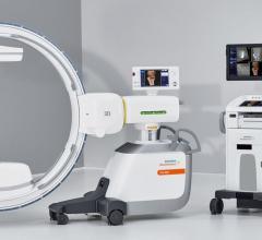 Siemens Healthineers Announces FDA Clearance of Cios Spin Mobile 3D C-Arm