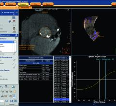 First-Ever Risk Tool Helps Predict TAVR Readmission Rates in 2018 SCAI late-breaking study. #SCAI, #SCAI2018