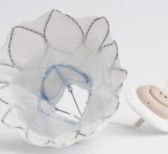 First Tendyne Transcatheter Mitral Valve Implanted in New York