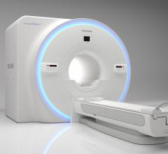 Toshiba Vantage Galan 3T XGO Edition MRI Features New Advanced Gradient
