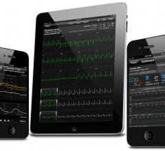 CardioNet AirStrip Mobility Solution Patient/Remote Monitoring ECG Software