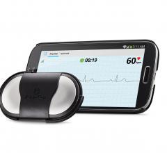 AliveCor Mobile ECG, AFib, detection, atrial fibrillation