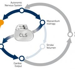 Biotronik, CLS, B3 clinical trial, atrial fibrillation, AF patients, stroke risk