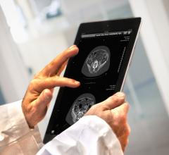 ResolutionMD 5.1, Calgary Scientific, FDA, intuitive interface