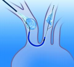 Claret Medical Sentinel Cerebral Protection System (CPS), FDA, TAVR embolic protection, transcatheter aortic valve replacement (TAVR).
